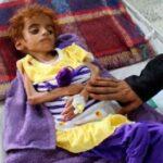 Le conseguenze dell'aggressione saudita allo Yemen: 100.000 bambini yemeniti muoiono ogni anno a causa di attacchi, malattie ed epidemie